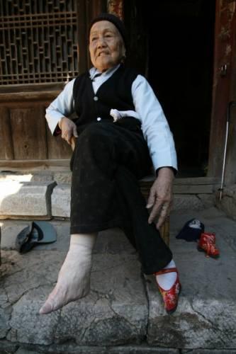 ჩინელის ფეხები